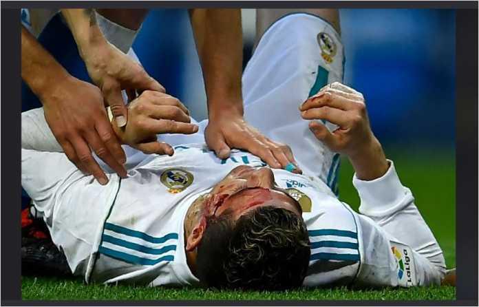 Cristiano Ronaldo terbaring di lapangan dengan luka terbuka di sisi kiri mata kirinya, sebelum dirawat oleh tim medis Real Madrid dalam laga melawan Deportivo La Coruna, Minggu malam