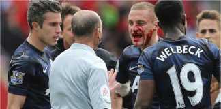 Nemanja Vidic mengalami cedera luka terbuka di wajahnya pada salah satu laga Liverpool vs Manchester United, Mei 2014