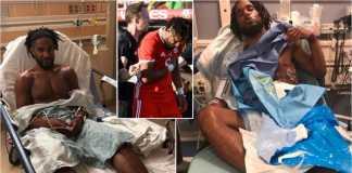 Ashley Williams mengalami cedera tertusuk tulang rusuk sendiri setelah bertabrakan dengan Chicharito dari Meksiko, Selasa lalu.