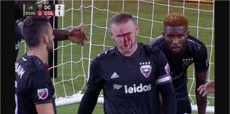 Wayne Rooney, Patah Hidung, MLS