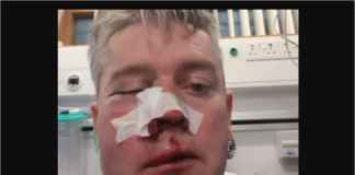 Wasit Bola Patah Tulang Rahang, Diserang Pemain