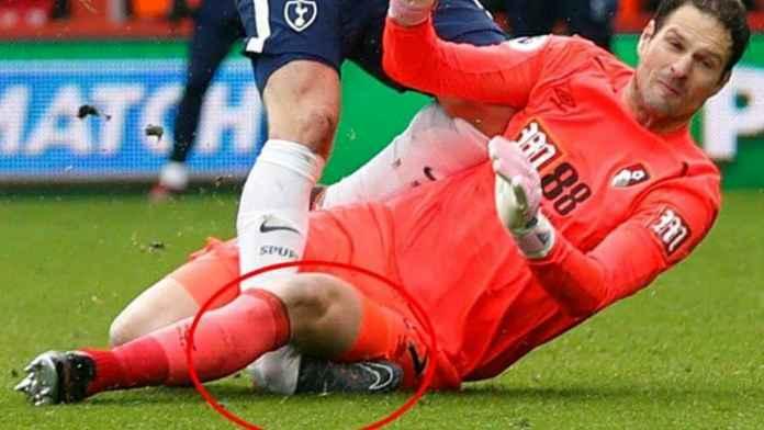 Harry Kane cedera engkel di laga Tottenham Hotspur vs Manchester City