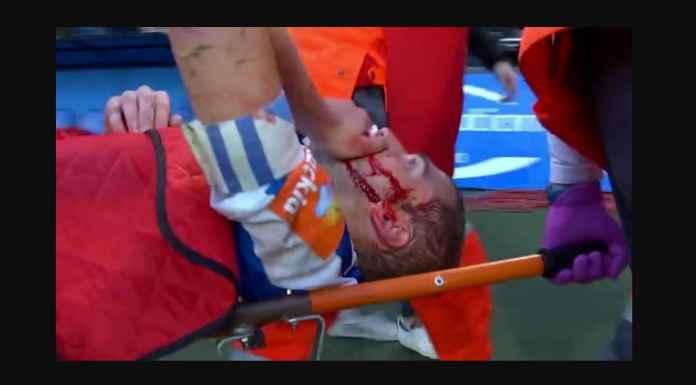 Pemain Liga Spanyol Luka Robek Dihajar Lawan