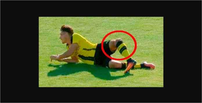 Pemain Dortmund Ini Pensiun Usia 21 Tahun Setelah 9 Kali Operasi Lutut