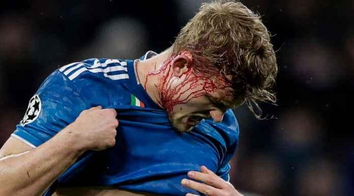 Lyon Cetak Gol Saat Bek Mahal Juventus Berdarah-darah
